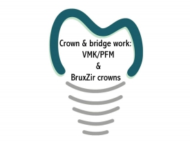 Crown & Bridge Work: VMK/PFM & BruxZir Crowns